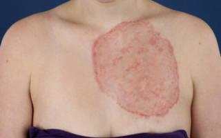 Основные симптомы и медпрепараты для лечения дерматомикоза у человека